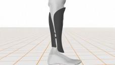 Protézu od BeSpoke si můžete vyzdobit podle sebe